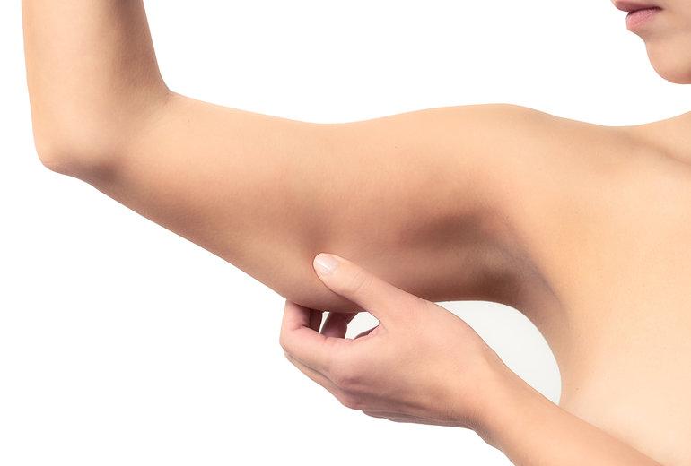 lifting brachial , brachioplastie tunisie